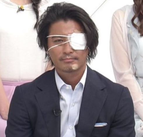 山口達也メンバー 怪我 眼帯 ZIP